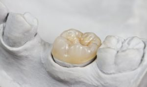 dental crown inside mold